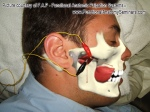 Examining the Lateral Pterygoid: Is palpation even possible?