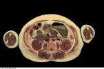 The Thoracolumbar Fascia, tissue depth, andspecificity