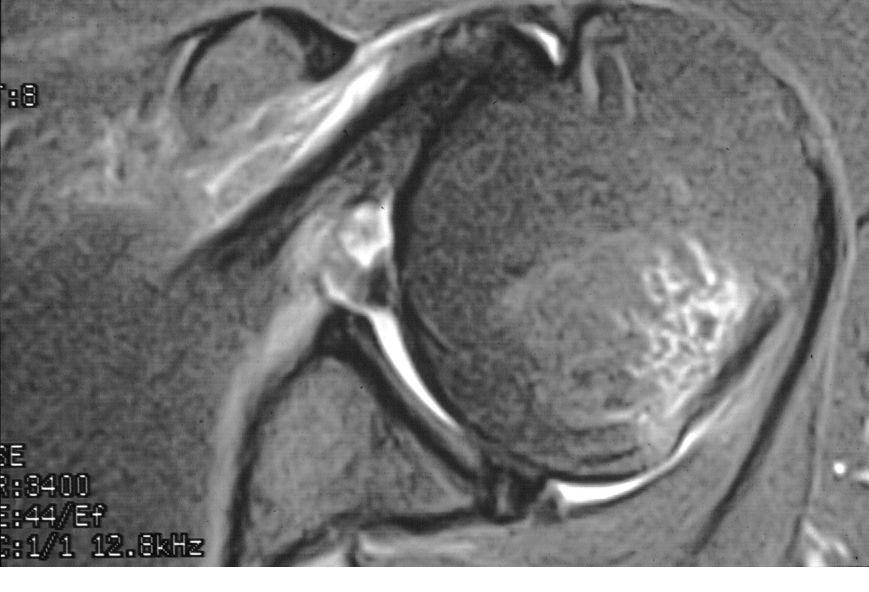 MRI Quiz: Axial shoulder view post anterior shoulder dislocation ...