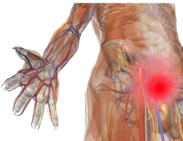 Sports Hernia Systematic Review Provided By Researchreviewservice